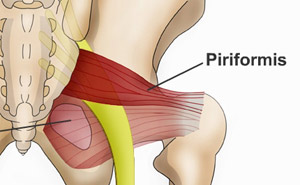 Piriformis Syndrome Elusive Obvious